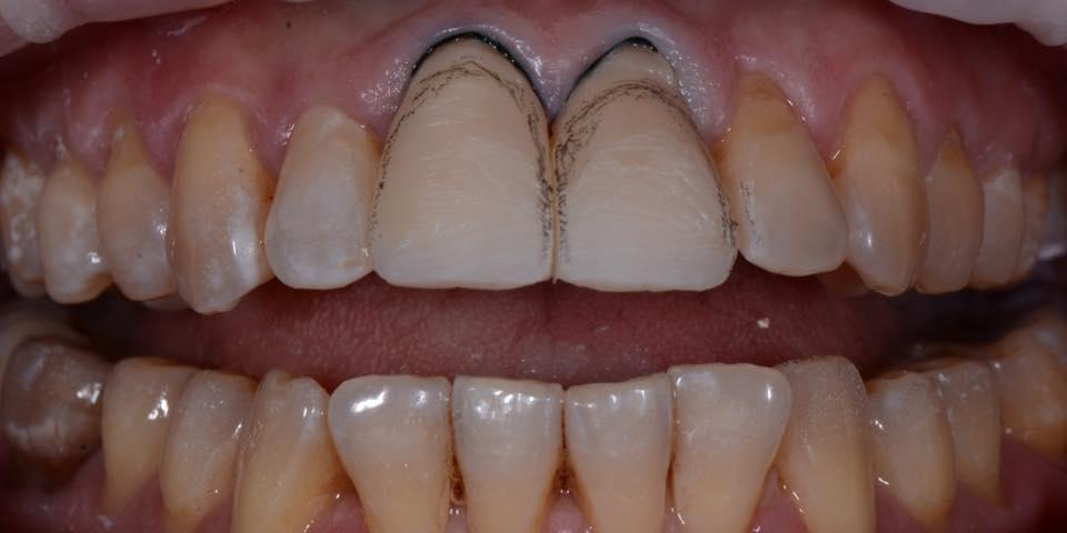 Делаем красивую улыбку, эстетическая реставрация зубов - фото №5
