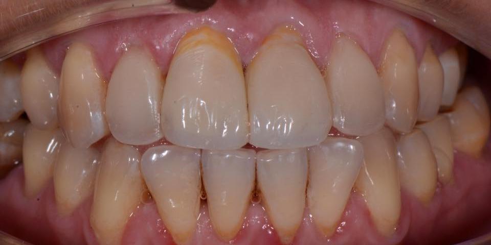 Делаем красивую улыбку, эстетическая реставрация зубов - фото №6