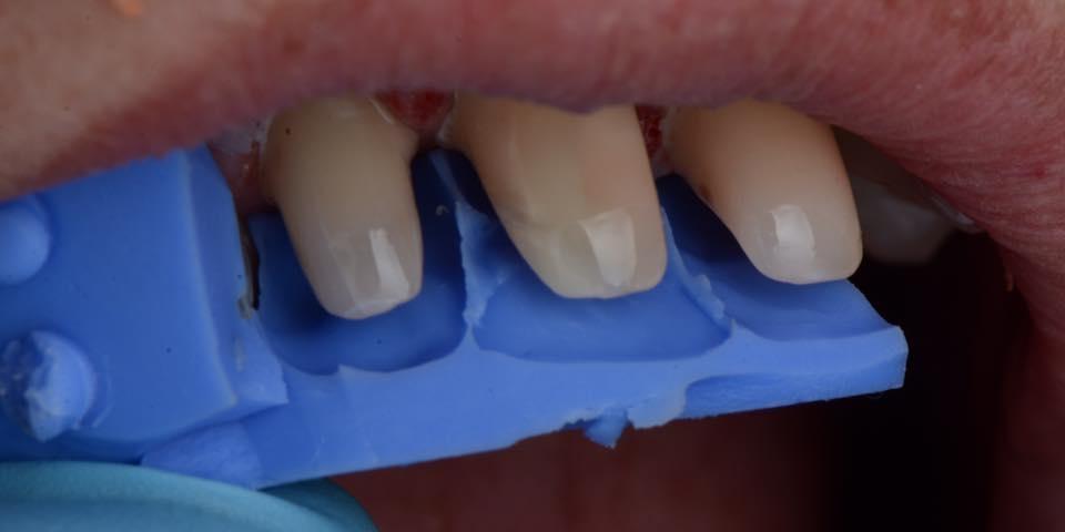 Делаем красивую улыбку, эстетическая реставрация зубов - фото №9