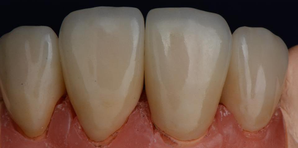 Делаем красивую улыбку, эстетическая реставрация зубов - фото №10