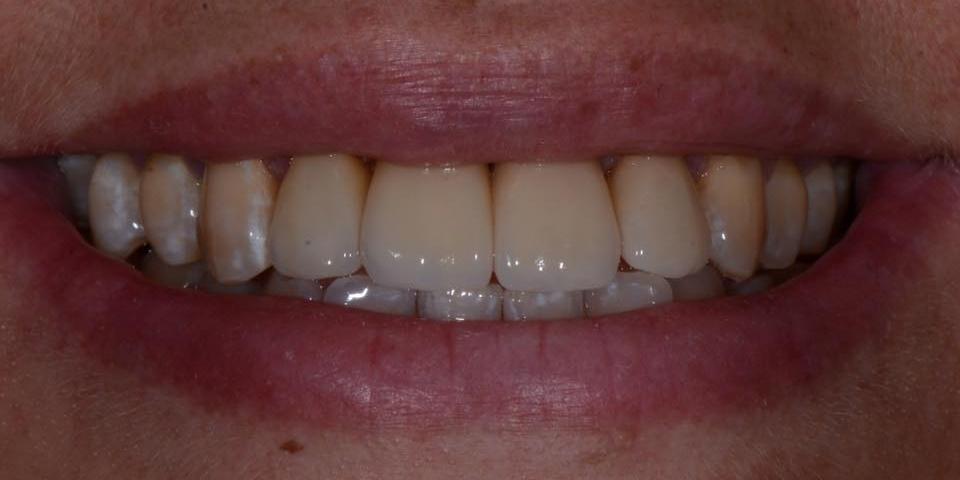 Делаем красивую улыбку, эстетическая реставрация зубов - фото №2