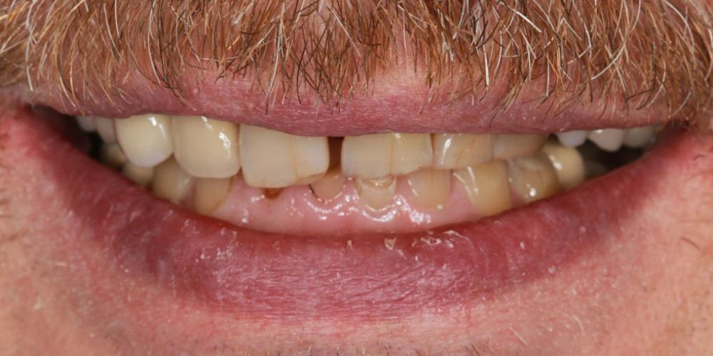 Тотальная стоматологическая реабилитация пациента: 12 имплантов + 28 виниров - фото №1