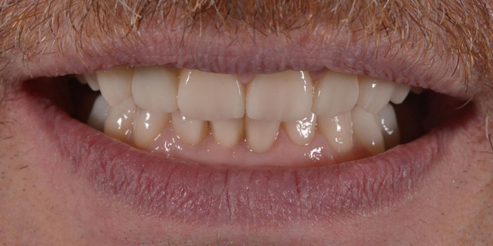 Тотальная стоматологическая реабилитация пациента: 12 имплантов + 28 виниров - фото №8