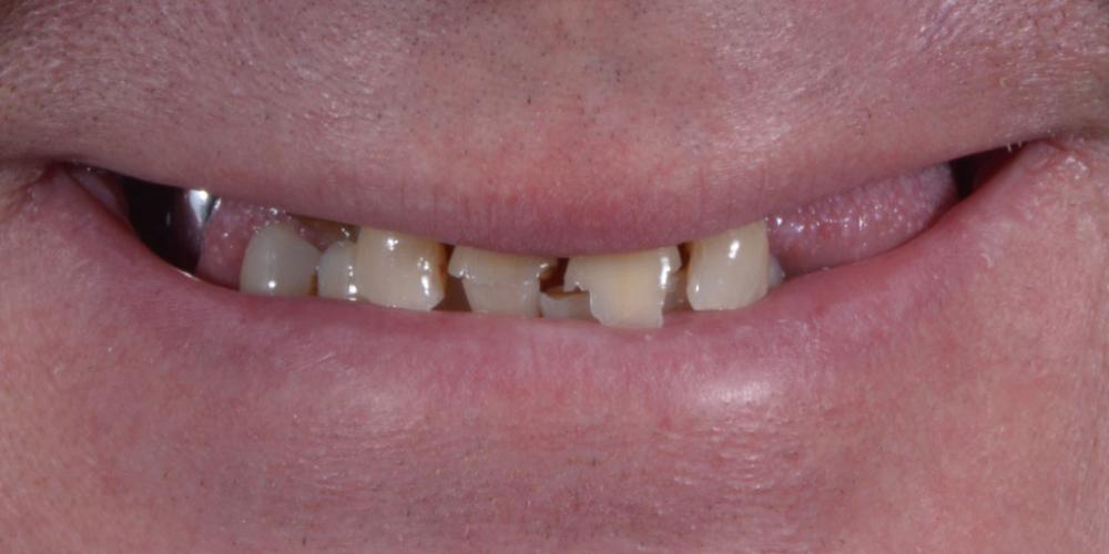 Полное восстановление двух челюстей на 16 имплантатах - фото №1