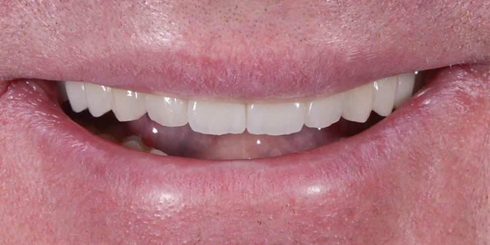 Полное восстановление двух челюстей на 16 имплантатах - фото №7