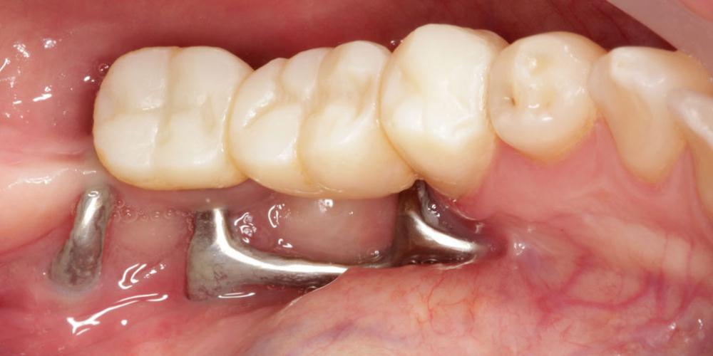 Цельнокерамические реставрации на зубах и имплантатах с опорой на индивидуальные абатменты - фото №1