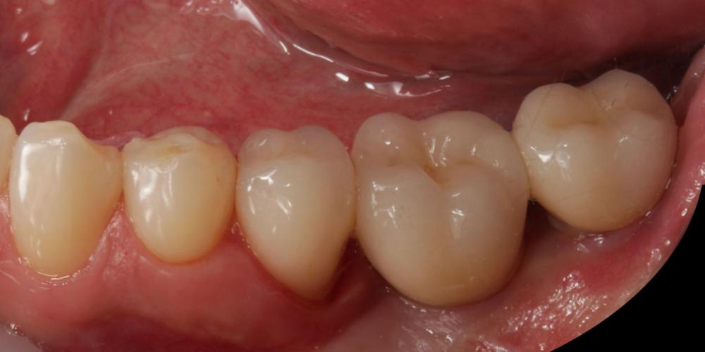 Цельнокерамические реставрации на зубах и имплантатах с опорой на индивидуальные абатменты - фото №5