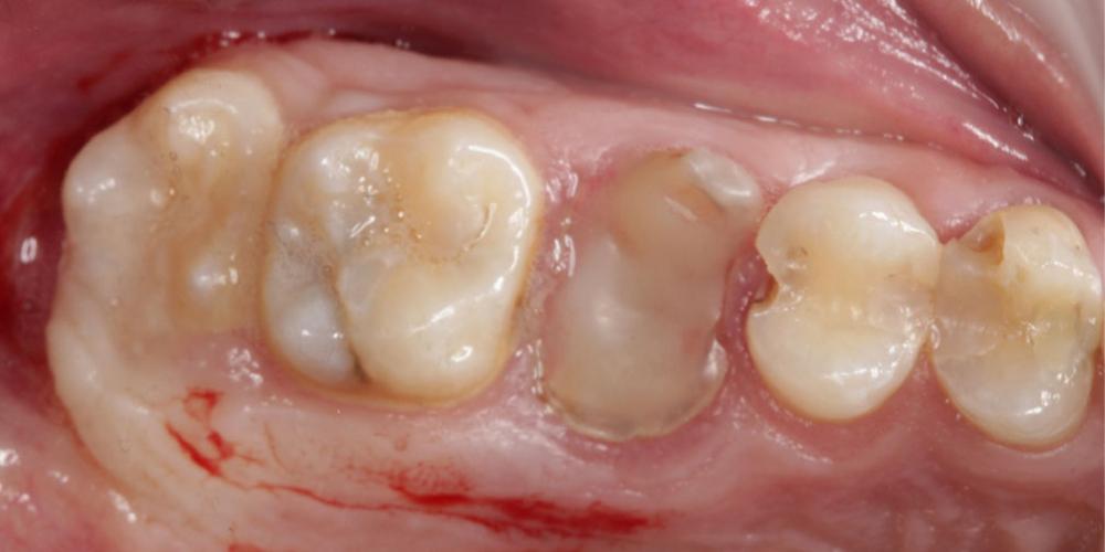 Восстановление зуба имплантацией + синус-лифтинг - все в один этап - фото №1