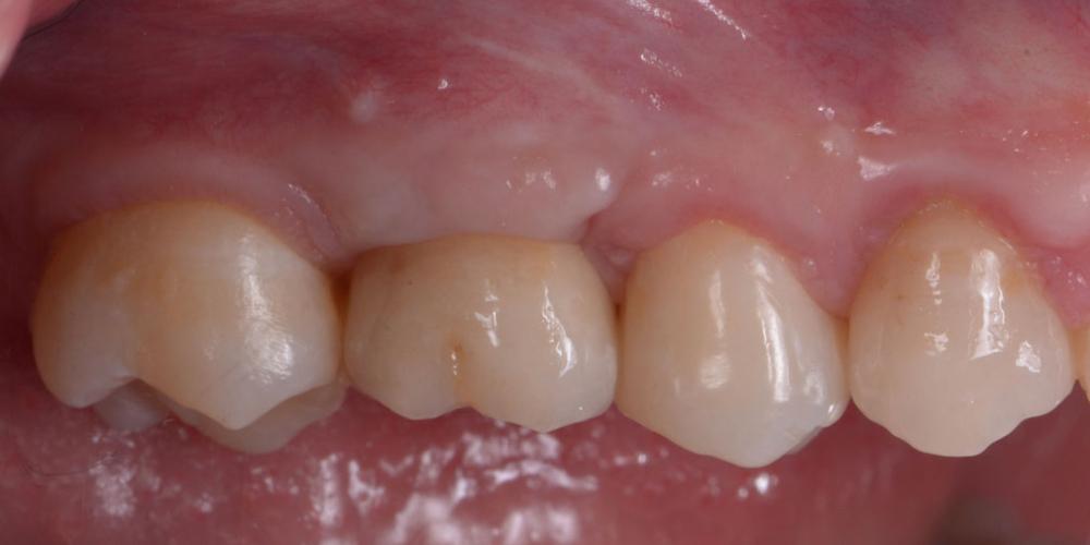 Восстановление зуба имплантацией + синус-лифтинг - все в один этап - фото №3