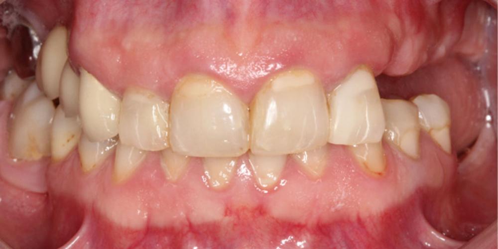 Тотальная стоматологическая реабилитация пациента с использованием 13-ти имплантов и 28 виниров - фото №1