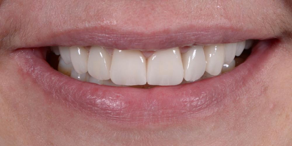 Тотальная стоматологическая реабилитация пациента с использованием 13-ти имплантов и 28 виниров - фото №8
