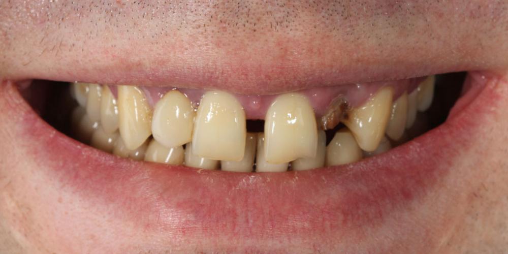 Эстетическое протезирование передних верхних зубов с предварительным исправлением прикуса и импланта - фото №1