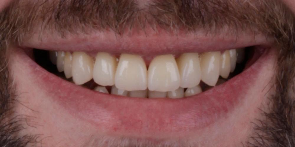 Эстетическое протезирование передних верхних зубов с предварительным исправлением прикуса и импланта - фото №8