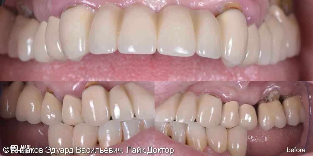 Тотально протезирование двух челюстей с импользованием дентальных имплантатов. - фото №1