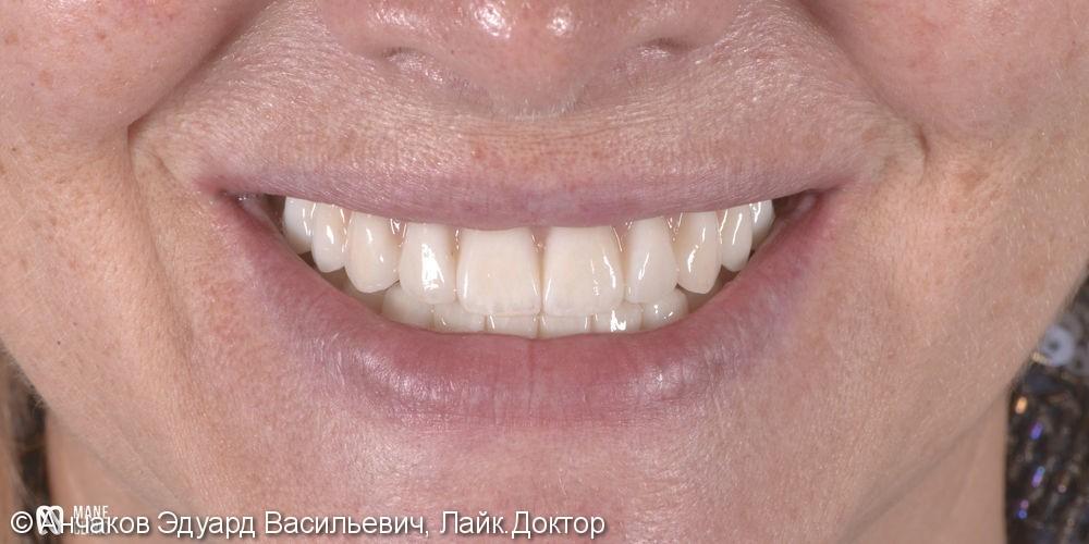 Тотально протезирование двух челюстей с импользованием дентальных имплантатов. - фото №4