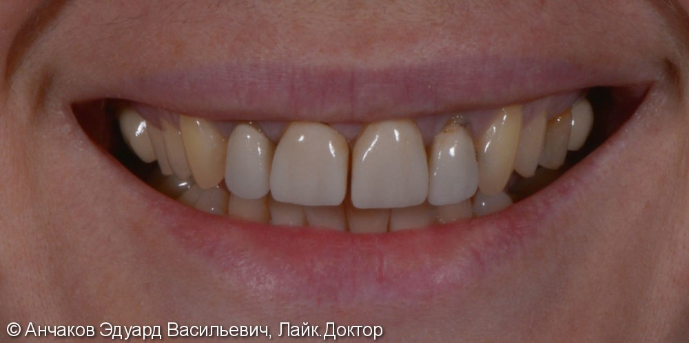 Фото и видео МАКЕТ (эскиз) будущей улыбки - фото №1