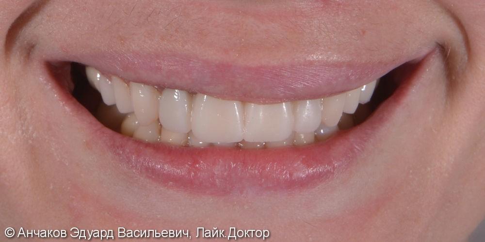 Фото и видео МАКЕТ (эскиз) будущей улыбки - фото №4