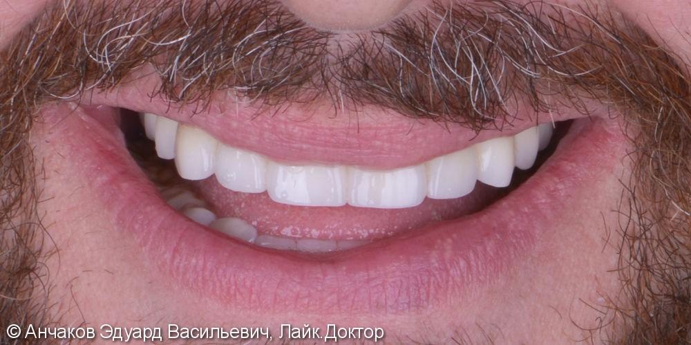 Пародонтит в самой тяжелой форме привел к удалению всех зубов одновременно - фото №5