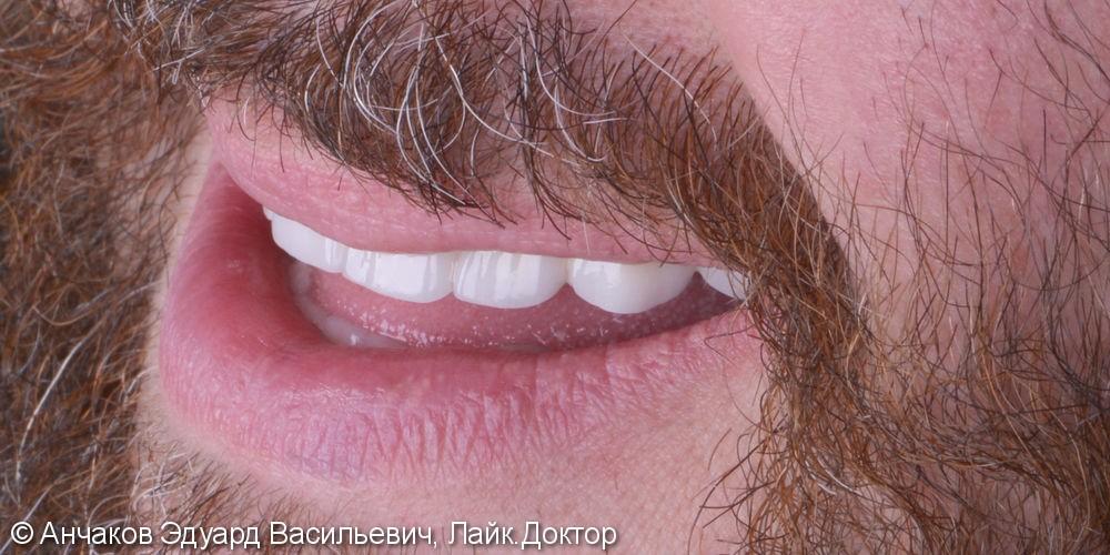 Пародонтит в самой тяжелой форме привел к удалению всех зубов одновременно - фото №3