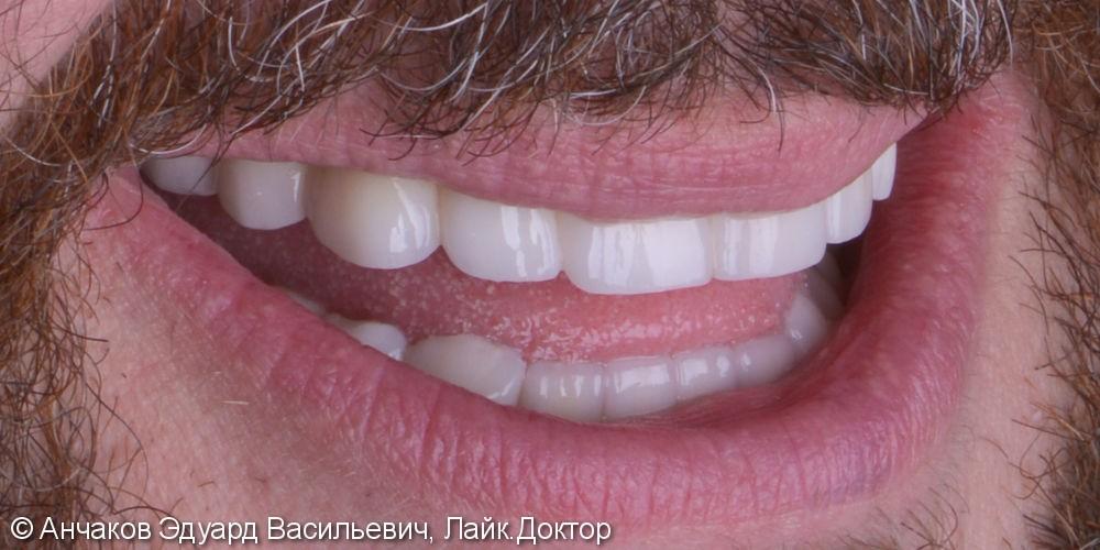 Пародонтит в самой тяжелой форме привел к удалению всех зубов одновременно - фото №4