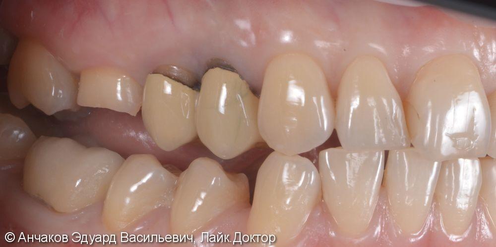 Одномоментная имплантация с пластикой десны и немедленной нагрузкой в боковом отделе верхней челюсти - фото №1