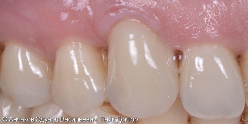 Одномоментная имплантация в позиции клыка на верхней челюсти - фото №2
