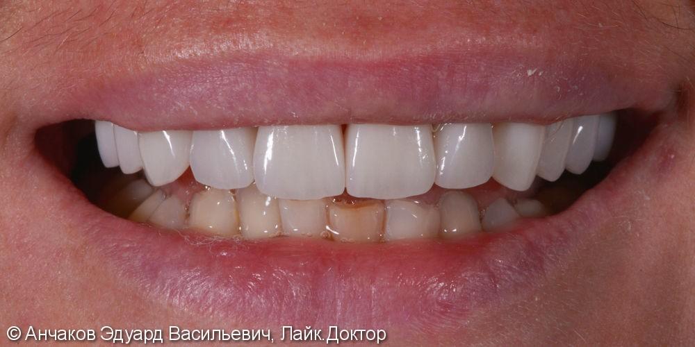 Фото и видео МАКЕТ (эскиз) будущей улыбки - фото №5