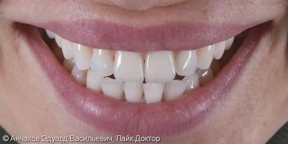 Протезирование центральных резцов верхней челюсти ультратонкими винирами - фото №2
