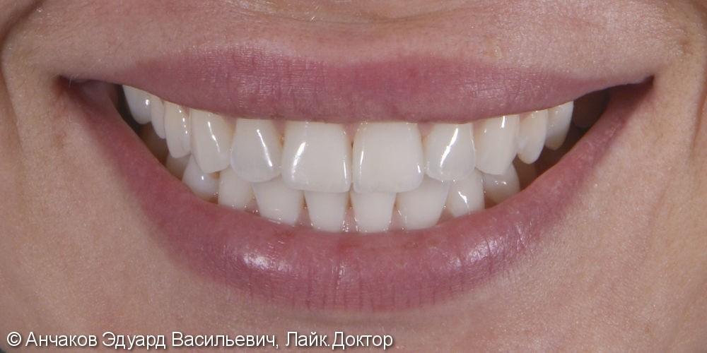 Протезирование центральных резцов верхней челюсти ультратонкими винирами - фото №3