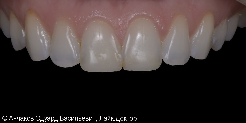 Протезирование центральных резцов верхней челюсти ультратонкими винирами - фото №1