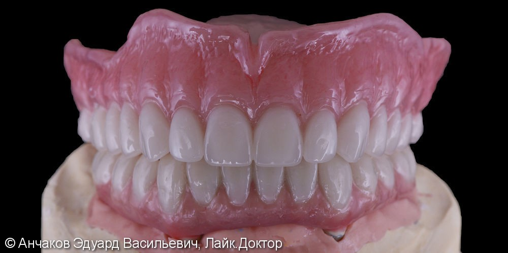 Имплантация зубов all - on - four (все на 4-х) на нижней чеслюсти и протезирование - фото №4
