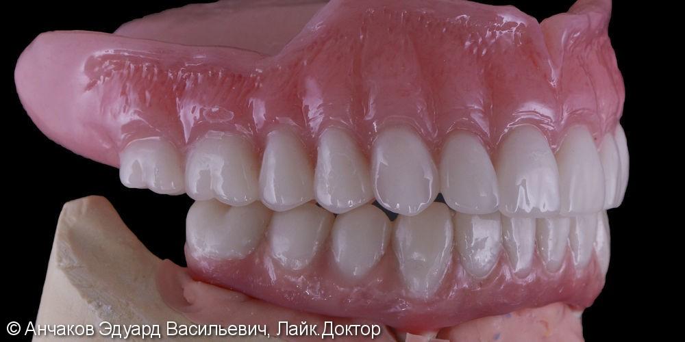 Имплантация зубов all - on - four (все на 4-х) на нижней чеслюсти и протезирование - фото №5