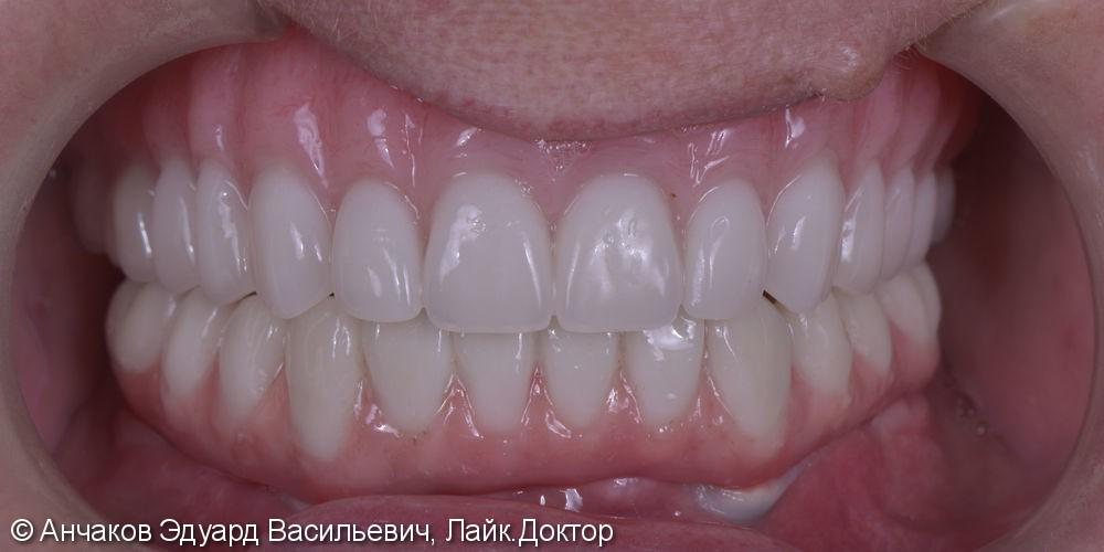 Имплантация зубов all - on - four (все на 4-х) на нижней чеслюсти и протезирование - фото №6