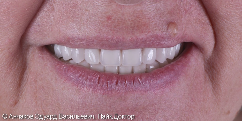 Имплантация зубов all - on - four (все на 4-х) на нижней чеслюсти и протезирование - фото №7