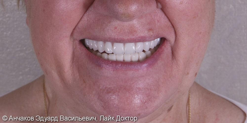 Имплантация зубов all - on - four (все на 4-х) на нижней чеслюсти и протезирование - фото №8