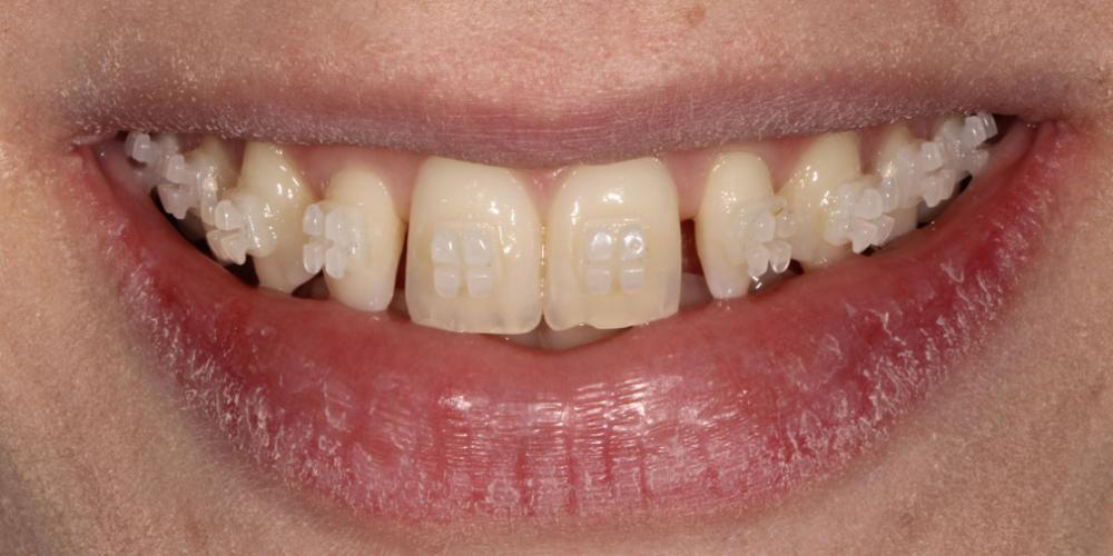 Исправление боковых резцов верхней челюсти керамическими винирами - фото №1