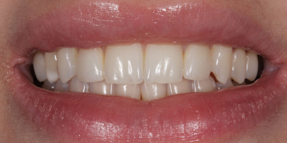 Исправление боковых резцов верхней челюсти керамическими винирами - фото №9