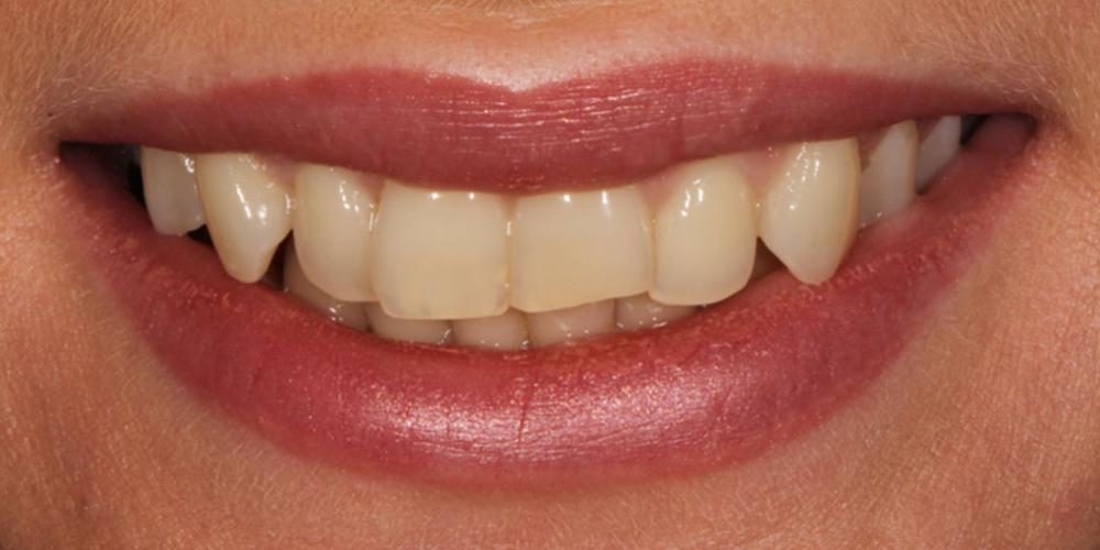 Улучшить улыбку и откорректировать эстетический недостатки верхних резцов - фото №1