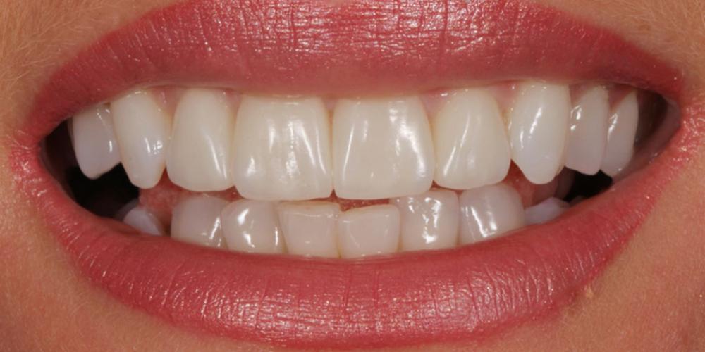 Улучшить улыбку и откорректировать эстетический недостатки верхних резцов - фото №3