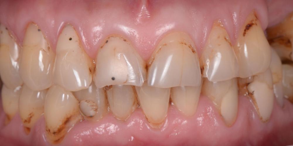 Тотальная стоматологическая реабилитация пациента: 6 дентальных имплантов, 28 керамических виниров - фото №1