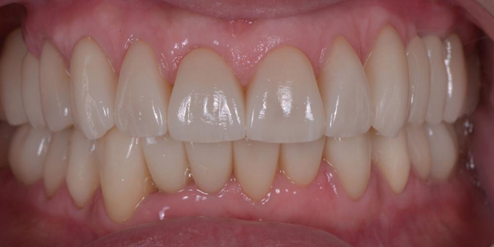 Тотальная стоматологическая реабилитация пациента: 6 дентальных имплантов, 28 керамических виниров - фото №7
