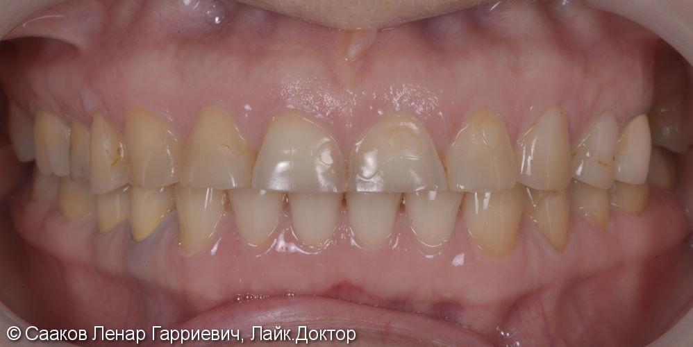 Эстетическая реабилитация с помощью керамических виниров и имплантатов - фото №1
