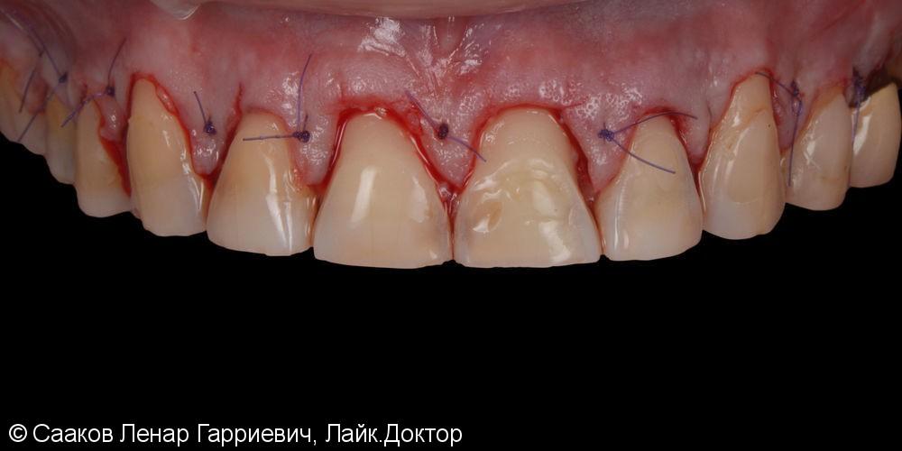 Эстетическая реабилитация с помощью керамических виниров и имплантатов - фото №4