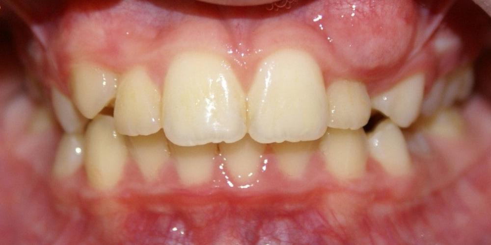 Раскрытие места для прорезывания клыков на верхней челюсти - фото №1