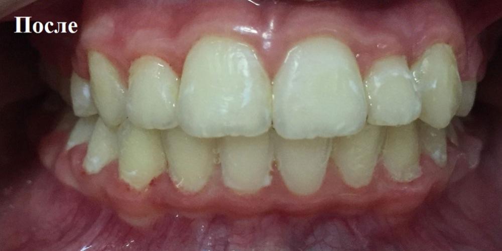 Раскрытие места для прорезывания клыков на верхней челюсти - фото №2