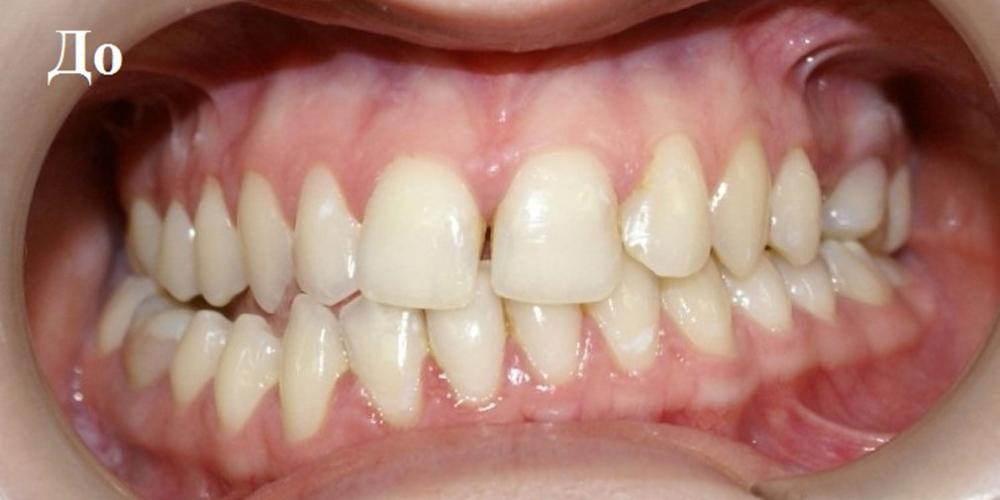 Исправление положения челюстей и неправильного положения зубов - фото №1