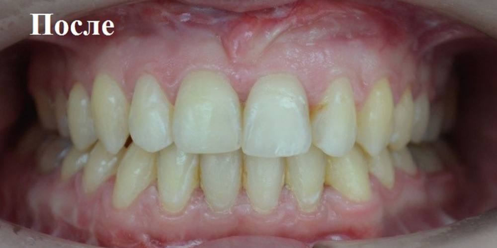 Исправление положения челюстей и неправильного положения зубов - фото №4