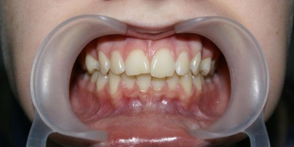 Результат выравнивания зубов на нижней и верхней челюстях - фото №1
