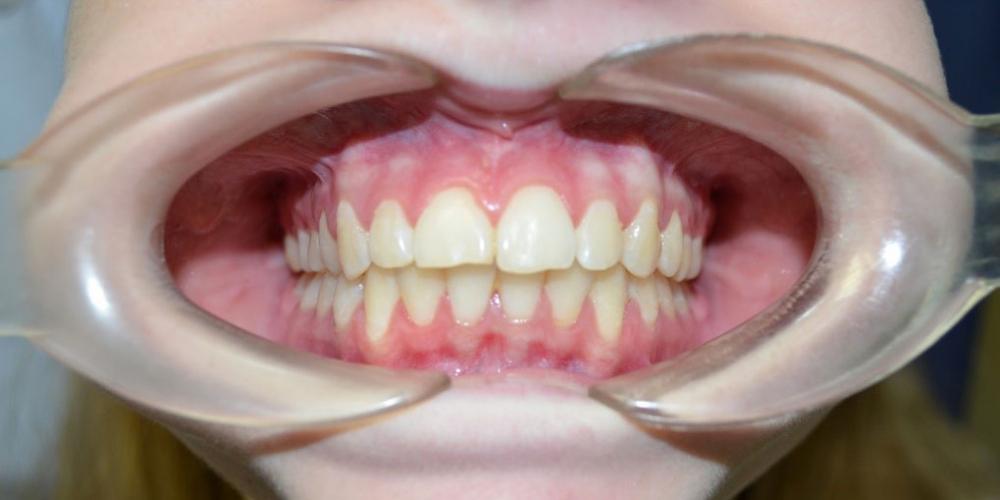 Результат выравнивания зубов на нижней и верхней челюстях - фото №9