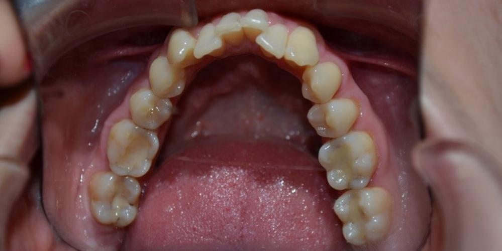 Результат исправления кривых зубов с помощью брекетов - фото №1